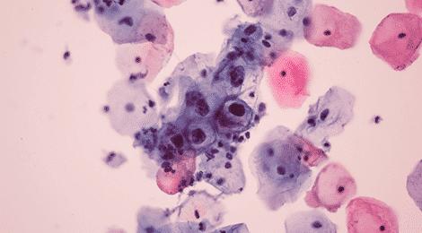 papilloma vírus zóna