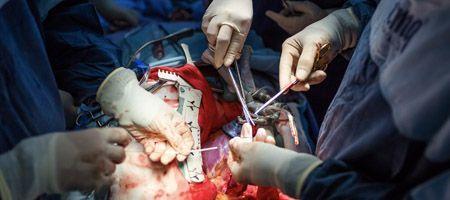Primer cirugía de corazón abierto