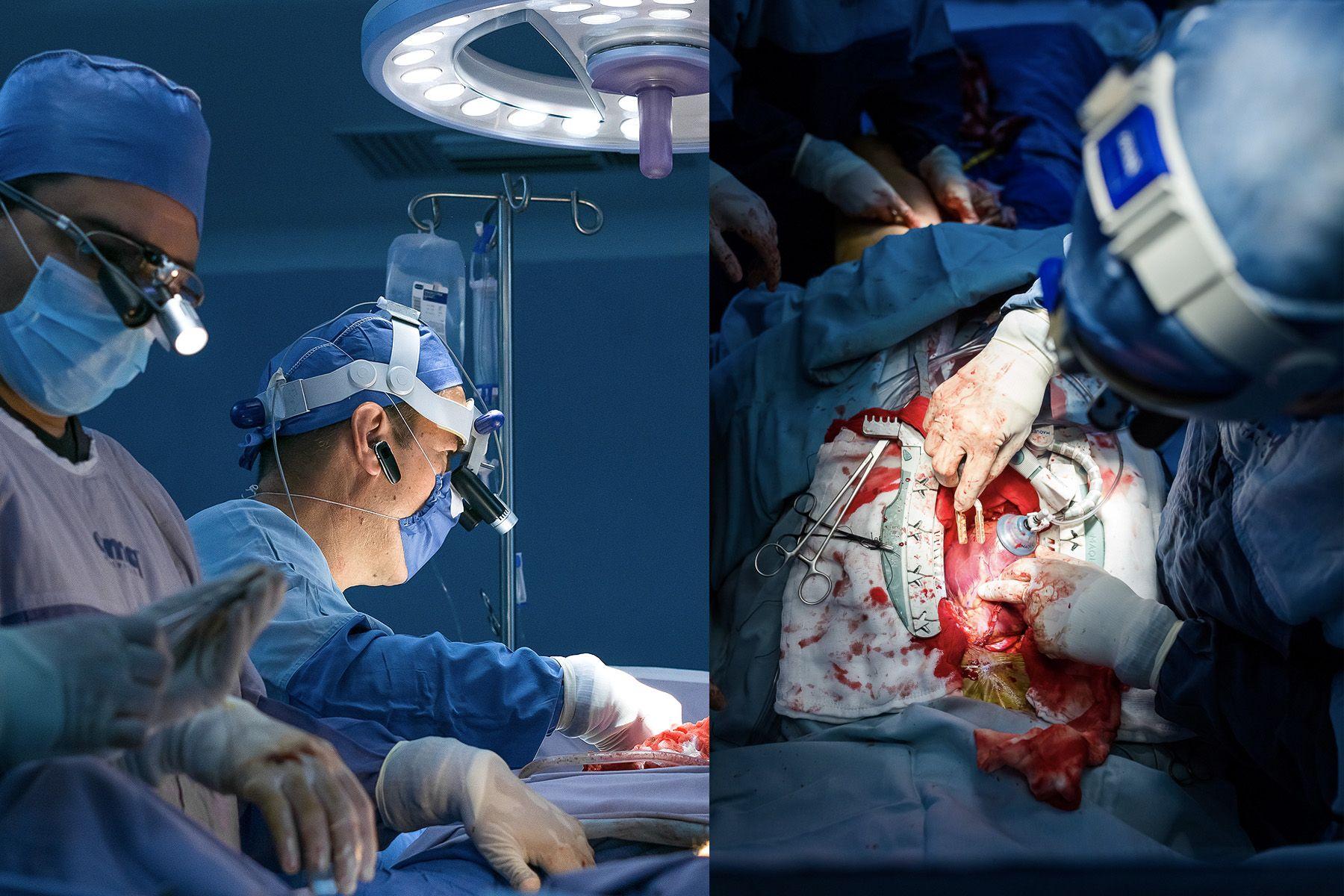 Cirugía de Coraz
