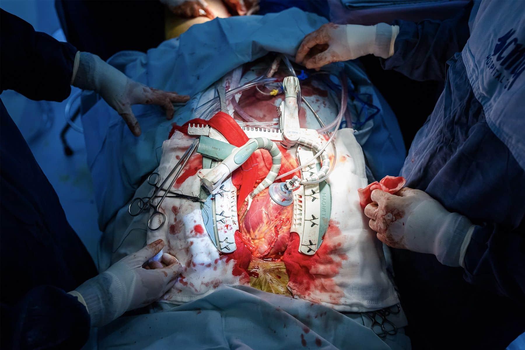 Cirugía de bypass coronario