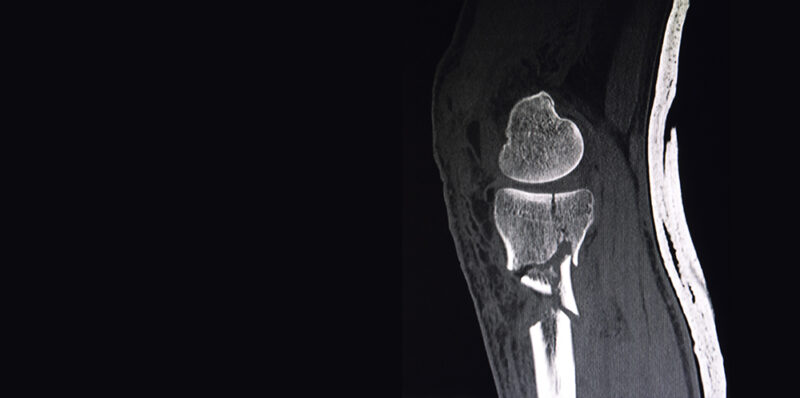 CT scan of a knee