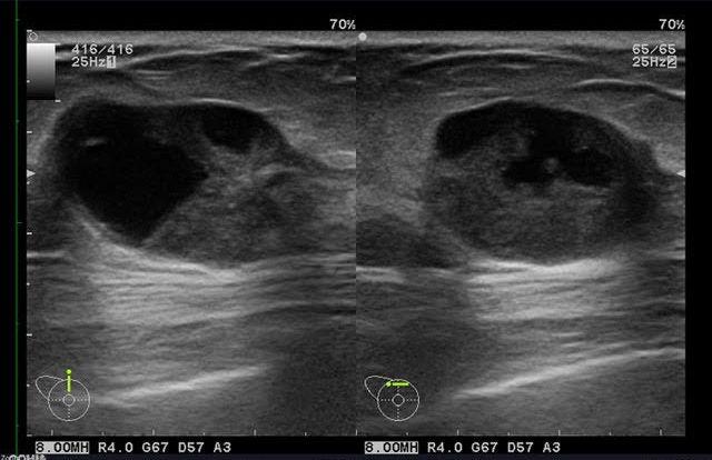 Ultrasonido de mamas con sospecha de tumoración quística