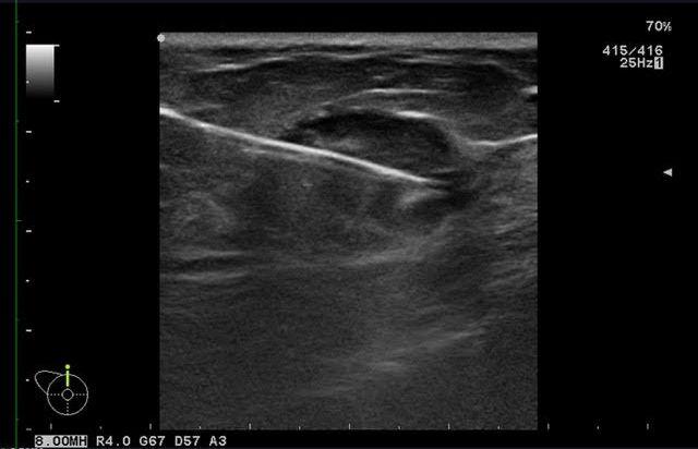 Biopsia de mamas mediante ultrasonido